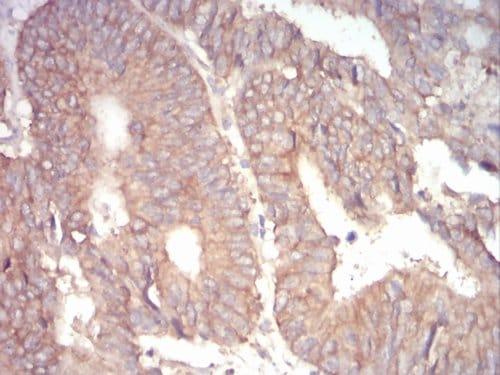 Immunohistochemistry (Formalin/PFA-fixed paraffin-embedded sections) - Anti-alpha Adducin antibody [5D4H1] - N-terminal (ab204961)