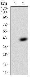 Western blot - Anti-TFF2 antibody [4G7C3] (ab204962)