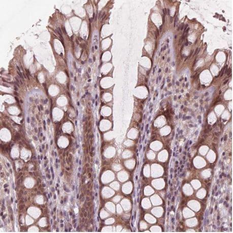 Immunohistochemistry (Formalin/PFA-fixed paraffin-embedded sections) - Anti-ZNF471/ERP1 antibody (ab204974)