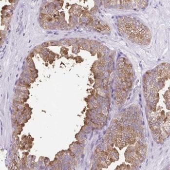 Immunohistochemistry (Formalin/PFA-fixed paraffin-embedded sections) - Anti-FAM177B antibody (ab204984)