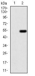 Western blot - Anti-Emerin antibody [8F5A8] (ab204987)