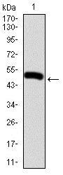 Western blot - Anti-G-CSF antibody [8G5F7] (ab204998)