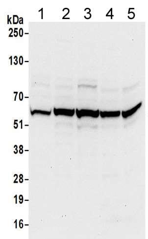 Western blot - Anti-TCP1 delta antibody (ab205013)