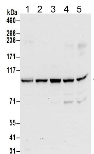 Western blot - Anti-AP2B1 antibody (ab205014)