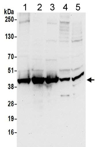 Western blot - Anti-Unrip antibody (ab205015)