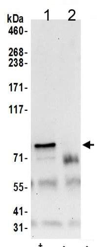 Immunoprecipitation - Anti-CD2AP antibody (ab205017)