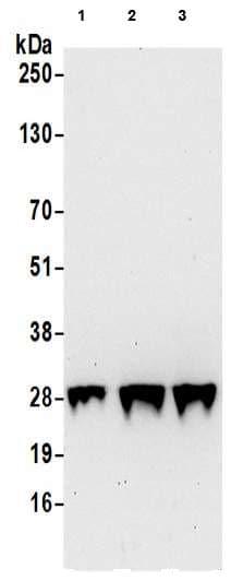 Western blot - Anti-GAS41 antibody (ab205018)