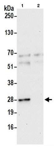 Immunoprecipitation - Anti-GAS41 antibody (ab205018)