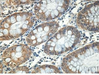 Immunohistochemistry (Formalin/PFA-fixed paraffin-embedded sections) - Anti-RABIF antibody (ab205029)