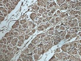 Immunohistochemistry (Formalin/PFA-fixed paraffin-embedded sections) - Anti-DPYS antibody (ab205039)