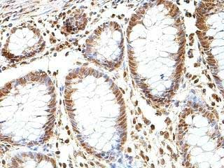 Immunohistochemistry (Formalin/PFA-fixed paraffin-embedded sections) - Anti-GBA2 antibody (ab205064)