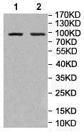 Western blot - Anti-GBA2 antibody (ab205064)