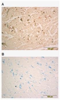 Immunohistochemistry (Formalin/PFA-fixed paraffin-embedded sections) - Anti-BDNF antibody [3B2] (ab205067)