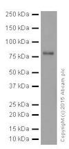 Western blot - Anti-FACL4 antibody [EPR17587] (ab205197)