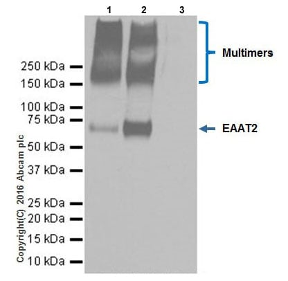 Immunoprecipitation - Anti-EAAT2 antibody [EPR19794] (ab205247)