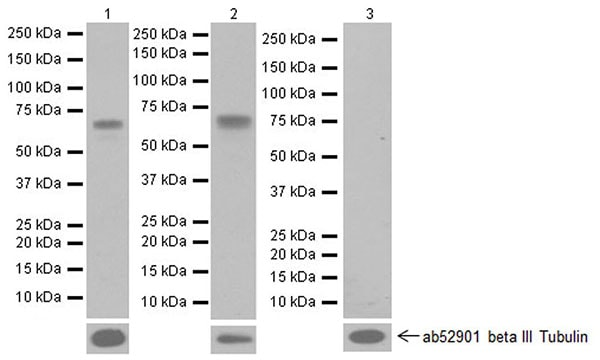 Western blot - Anti-active YAP1 antibody [EPR19812] (ab205270)