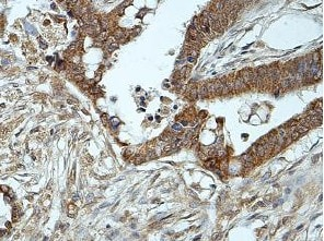 Immunohistochemistry (Formalin/PFA-fixed paraffin-embedded sections) - Anti-ALR/HPO antibody (ab205282)