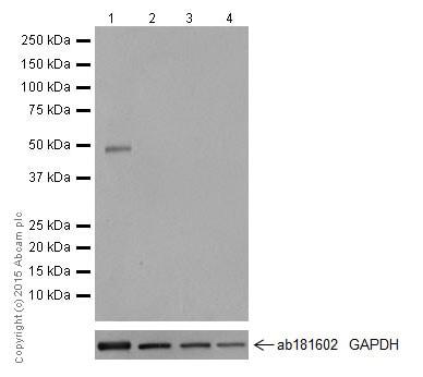 Western blot - Anti-NeuroD1 antibody [EPR17084] (ab205300)