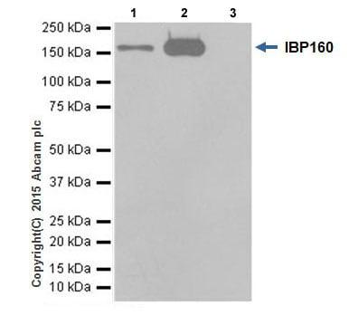 Immunoprecipitation - Anti-IBP160 antibody [EPR16942] (ab205303)
