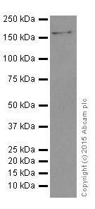 Western blot - Anti-IBP160 antibody [EPR16942] (ab205303)
