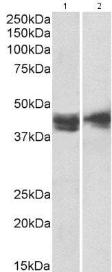 Western blot - Anti-IL3RA/CD123 antibody (ab205365)