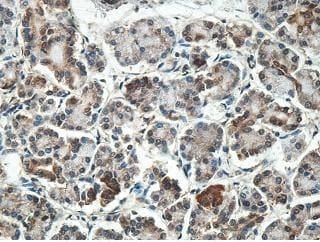 Immunohistochemistry (Formalin/PFA-fixed paraffin-embedded sections) - Anti-MYL7 antibody (ab205374)