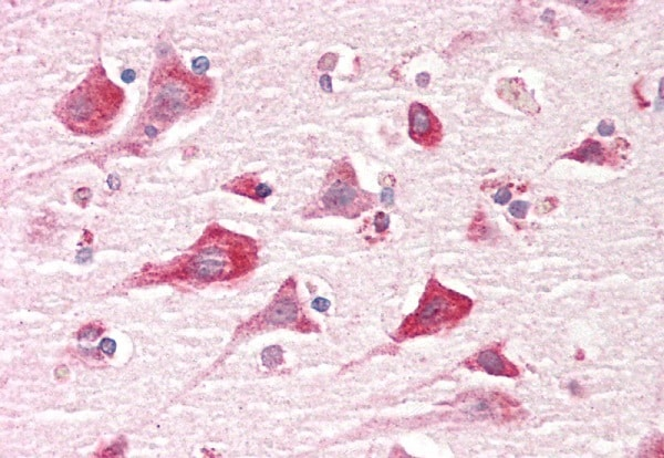 Immunohistochemistry (Formalin/PFA-fixed paraffin-embedded sections) - Anti-Caprin-1 antibody (ab205377)