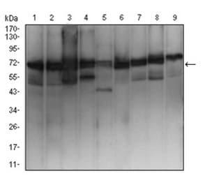 Western blot - Anti-Ezrin antibody [6F1A9] (ab205381)