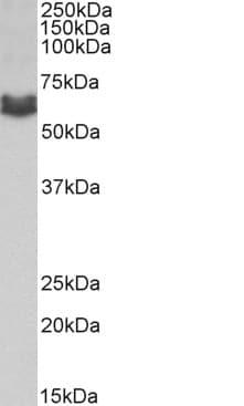 Western blot - Anti-AMHR2 antibody (ab205398)