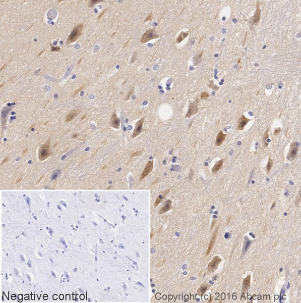 Immunohistochemistry (Formalin/PFA-fixed paraffin-embedded sections) - Anti-MAP1LC3A antibody [EP1528Y] (HRP) (ab205439)