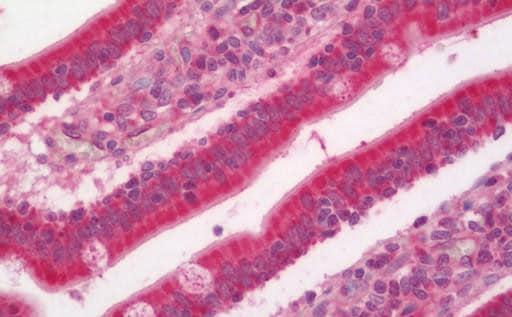 Immunohistochemistry (Formalin/PFA-fixed paraffin-embedded sections) - Anti-AP1S3 antibody (ab205509)