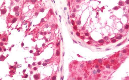 Immunohistochemistry (Formalin/PFA-fixed paraffin-embedded sections) - Anti-DTWD1 antibody (ab205512)