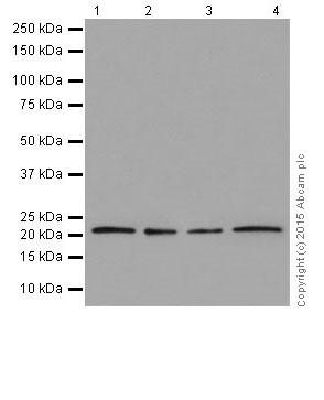 Western blot - Anti-RAB13 antibody [EPR14110(2)] (ab205528)