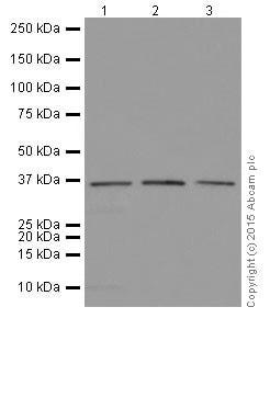 Western blot - Anti-ELOVL5 antibody [EPR17151] (ab205535)