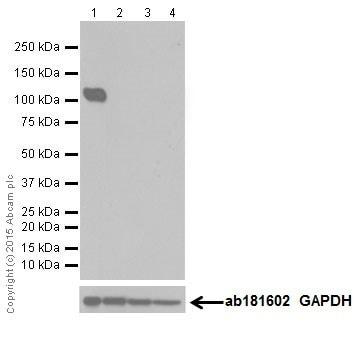 Western blot - Anti-KA1 antibody [EPR18322] (ab205537)