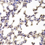 Immunohistochemistry (Formalin/PFA-fixed paraffin-embedded sections) - Anti-C1r antibody (ab205546)