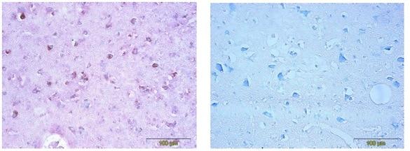 Immunohistochemistry (Formalin/PFA-fixed paraffin-embedded sections) - Anti-CDNF antibody [6G5] (ab205551)