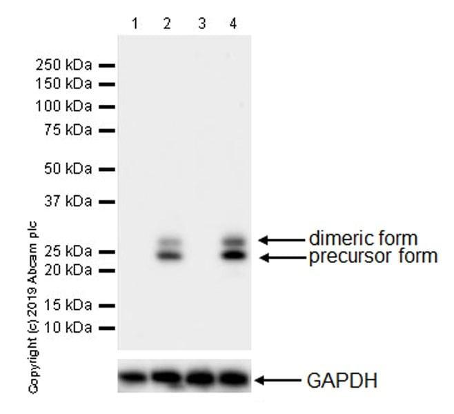 Western blot - Anti-TNF alpha antibody [EPR21753-109] (ab205587)