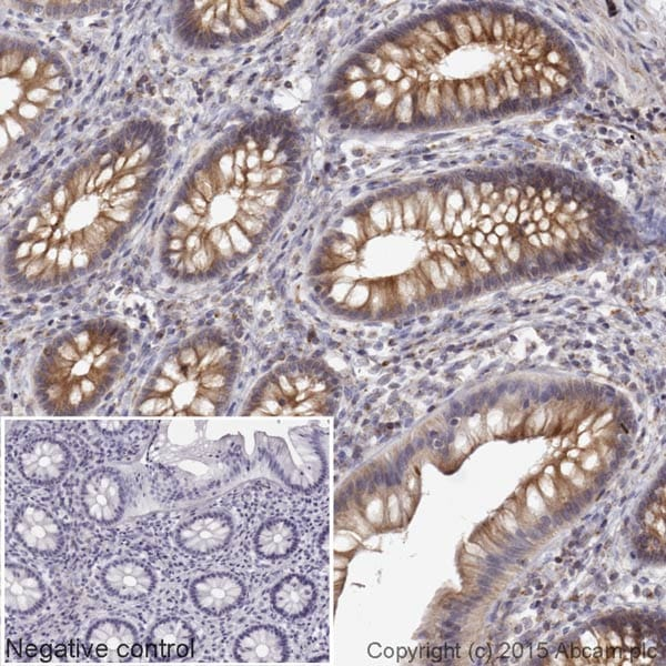 Immunohistochemistry (Formalin/PFA-fixed paraffin-embedded sections) - Donkey Anti-Mouse IgG H&L (HRP) (ab205724)
