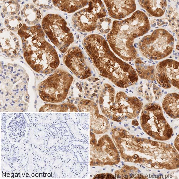 Immunohistochemistry (Formalin/PFA-fixed paraffin-embedded sections) - HRP Anti-GNAI2 antibody [EPR9469] (ab205782)