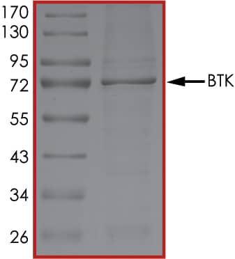 SDS-PAGE - Recombinant human BTK protein (ab205800)