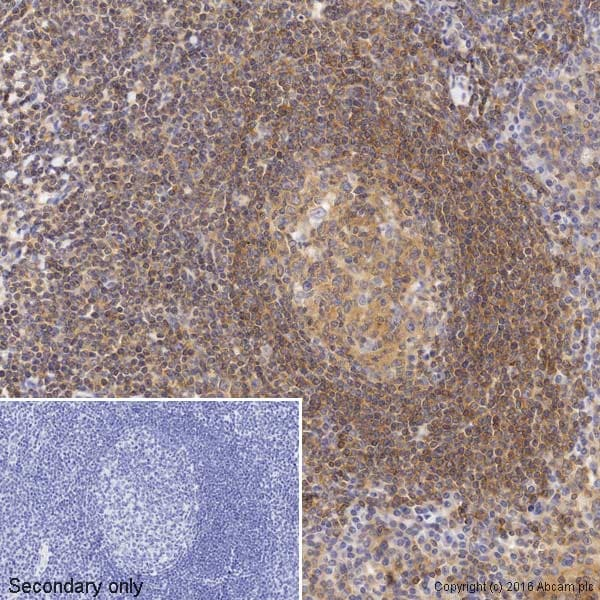 Immunohistochemistry (Formalin/PFA-fixed paraffin-embedded sections) - Anti-NF-kB p65 antibody [E379] (Biotin) (ab205823)
