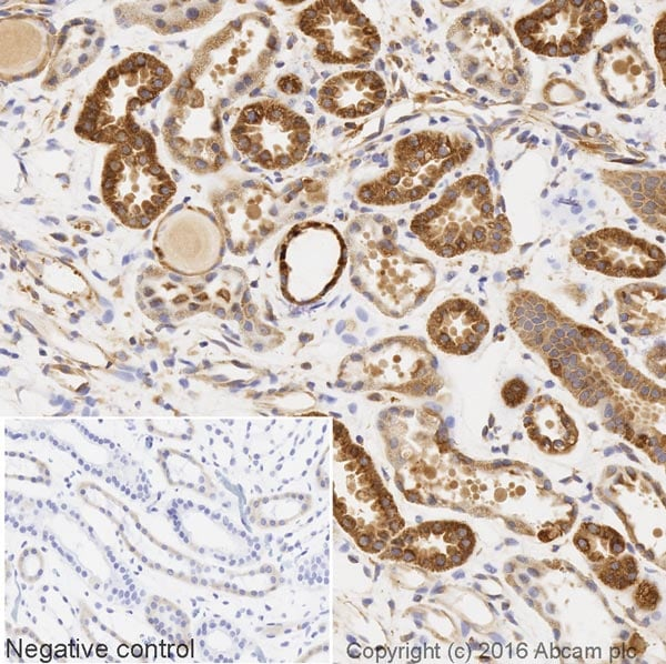 Immunohistochemistry (Formalin/PFA-fixed paraffin-embedded sections) - Biotin Anti-IL-1RA antibody [EPR6483] (ab205855)