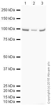 Western blot - Anti-C7 antibody [EPR7036] (HRP) (ab205857)