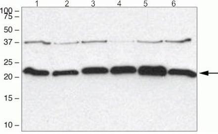 Western blot - Anti-Syndecan 2/HSPG antibody (ab205884)