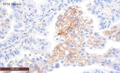 Immunohistochemistry (Formalin/PFA-fixed paraffin-embedded sections) - Anti-PD-L1 antibody [28-8] (ab205921)