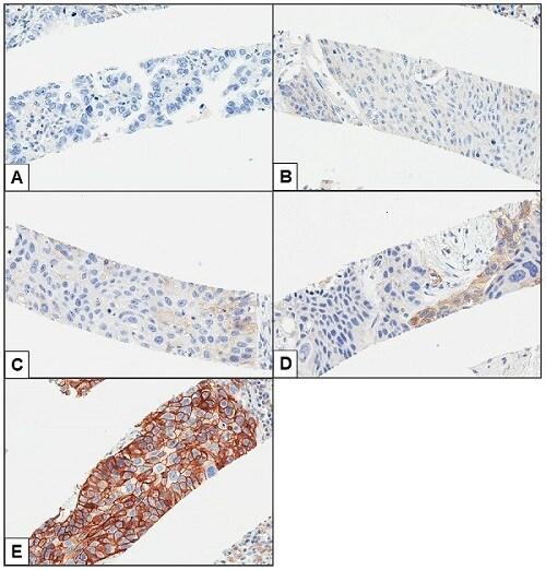 Immunohistochemistry (Formalin/PFA-fixed paraffin-embedded sections) - Anti-PD-L1 antibody [28-8] (ab205921)