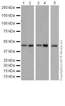 Western blot - Anti-MAPK 12 antibody [EPR6528(N)] (ab205926)