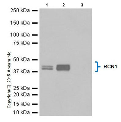 Immunoprecipitation - Anti-RCN1/RCN antibody [EPR17162] (ab205927)