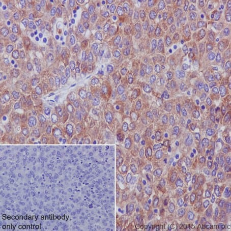 Immunohistochemistry (Formalin/PFA-fixed paraffin-embedded sections) - Anti-RCN1/RCN antibody [EPR17162] (ab205927)